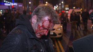 wounded in belfast